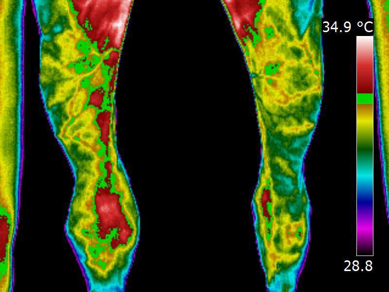 Equine infrared thermography